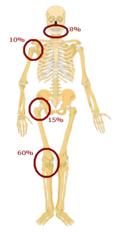 File:120px-Prediclationofosteosarcoma2.PNG