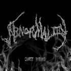 Abnormality Demo