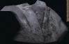 Steel titan chathead