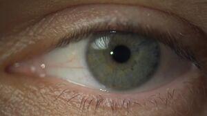 Henrys Augenfarbe
