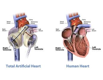 600px-Graphic of the SynCardia temporary Total Artificial Heart beside a human heart-1-