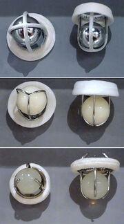 Prosthetic Cardiac Ball Valves