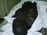 Burnt Body