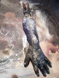 Burnt Severed Hand