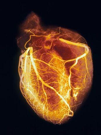 Heart-angiogram 986 600x450
