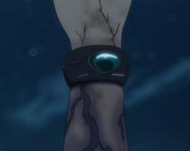 Charioce XVII's bracelet