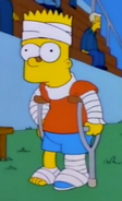 Bart fake injured