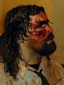File:Mick Foley injury.jpg