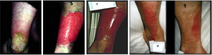 Burned leg