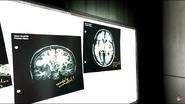 Akers Brain scan