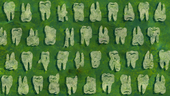 The Whole Tooth Background