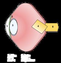 Pnolthane eye (1)