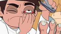 S2E4 Marco gets toenail lodged in his eye socket