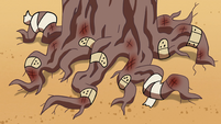 S2E13 Talking tree's bruised and bandaged roots