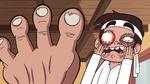 S2E4 Marco Diaz covered in toenails