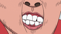 S3E32 Close-up on Marco's deformed teeth