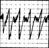 EKG Human