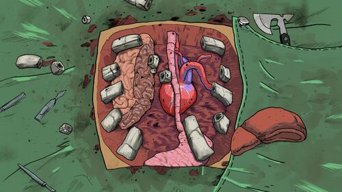 Surgeon Simulator 2013 Artwork 2