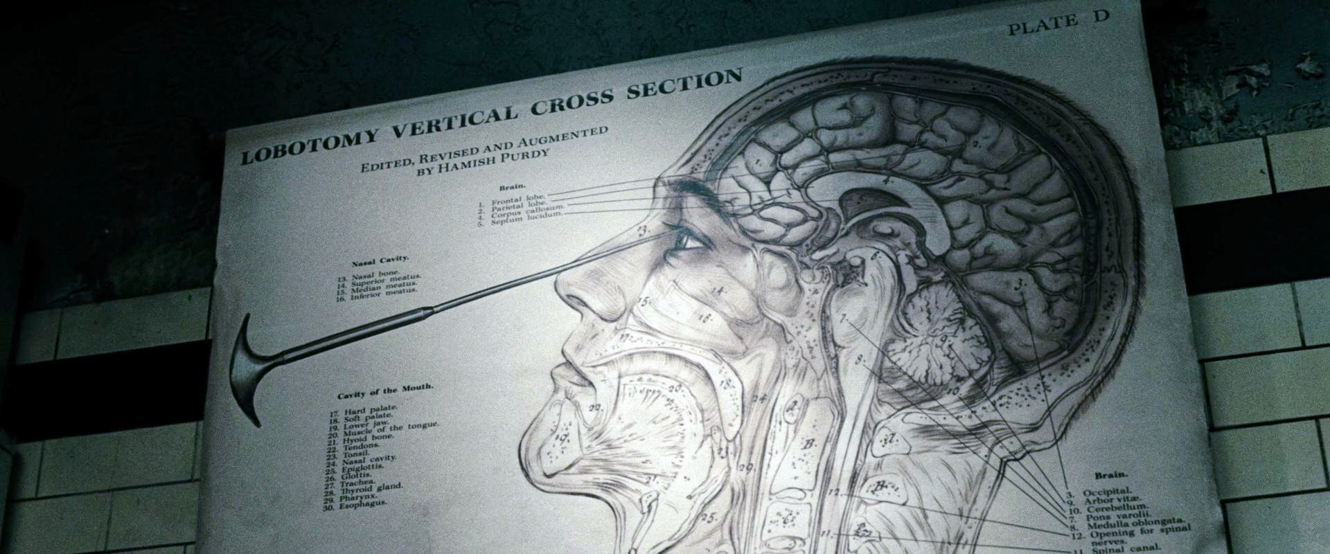 What is a lobotomy Effects of lobotomy 22