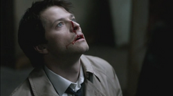 Castiel beaten up by Uriel