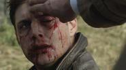 Dean being healed