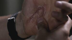 Sam's Scar