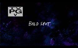 250px-Bald Spot