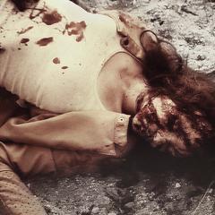 Julia Baccali (Après s'être fait attaquer par Kali)