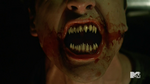 Teen Wolf Season 5 Episode 4 Condition Terminal Donovan new teeth
