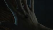 Cody-Christian-Theo-spider-bite-Teen-Wolf-Season-6-Episode-12-Raw-Talent