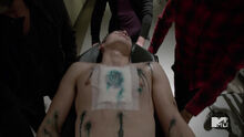 Michael-Johnston-Corey-injured-Teen-Wolf-Season-6-Episode-10-Riders-on-the-Storm