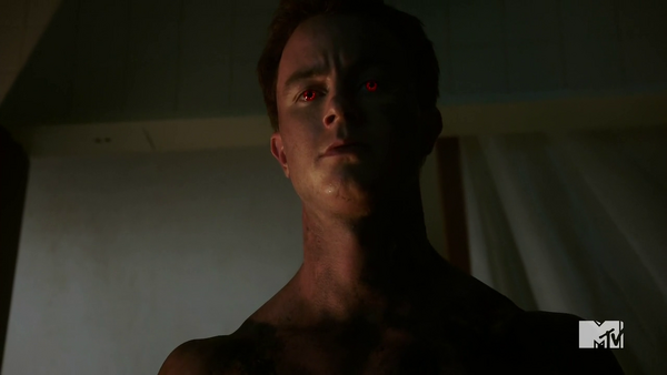 Teen Wolf Season 5 Episode 10 Status Asthmaticus Parrish comes for chimera