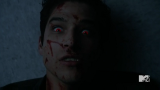 Teen Wolf Season 5 Episode 10 Status Asthmaticus Scott comes back