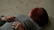 Dylan-Sprayberry-Liam-bloody-mess-Teen-Wolf-Season-6-Episode-14-Face-to-Faceless
