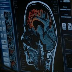 l'anomalie du cerveau de Stiles