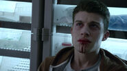 Andrew-Matarazzo-Gabe-dying-Teen-Wolf-Season-6-Episode-20-The-Wolves-of-War