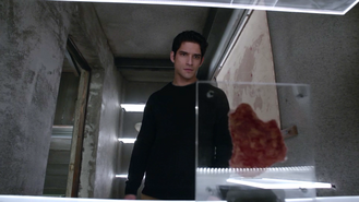 Tyler-Posey-Scott-cut-skin-Teen-Wolf-Season-6-Episode-16-Triggers