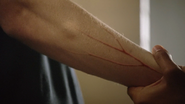C-J-Hoff-Edgar-red-veins-arm-Teen-Wolf-Season-6-Episode-16-Triggers