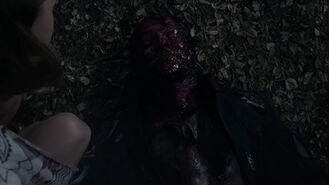 Ian-Bohen-Peter-burned-and-bloody-Teen-Wolf-Season-6-Episode-5-Radio-Silence