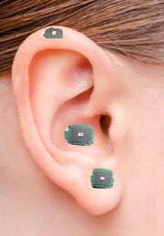 Location of implant in a human ear
