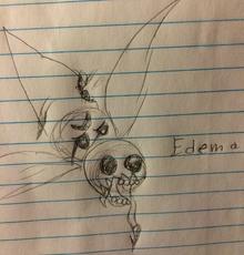 Edema concept
