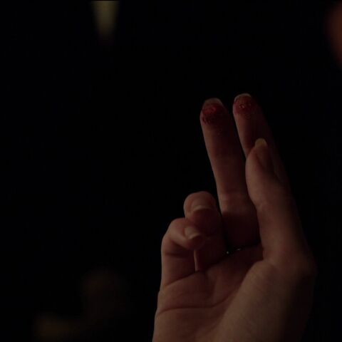 Mary Sibley's burned fingers