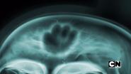 The Brain (11)