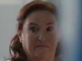 Peggy Displasia