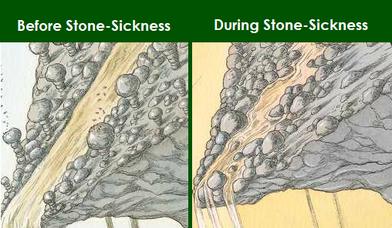 Stone Sickness
