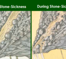 Stone-Sickness