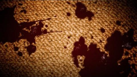 My Carpet Has Blood On It (Prank Call)
