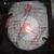 Mapa de zonas perdidas