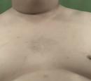Pimp's nipples