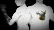 Cyborg Heart and Arm (Anime)